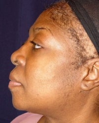 Rhinoplasty Side View before 874489