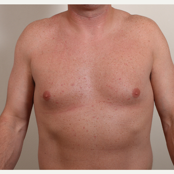 25-34 year old woman treated with Male Breast Reduction before 3060283
