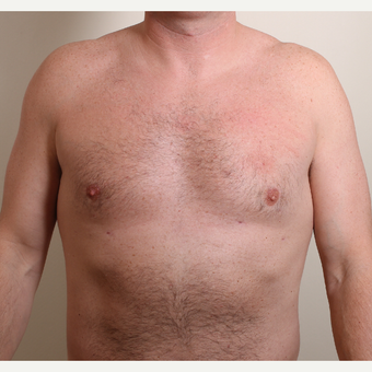25-34 year old woman treated with Male Breast Reduction after 3060283