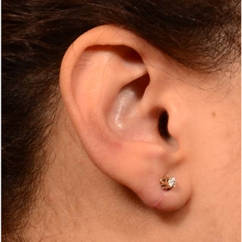 25-34 year old woman treated with Ear Lobe Surgery after 3041291