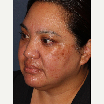 25-34 year old woman treated with Laser Treatment before 3220120