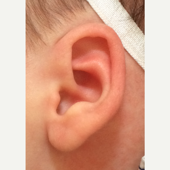 Non-surgical newborn ear correction after 3417186