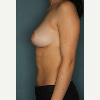 18-24 year old woman treated with Breast Reduction after 3489587