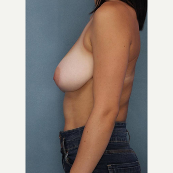 18-24 year old woman treated with Breast Reduction before 3489587