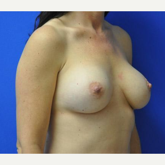 Breast Augmentation before 3206535
