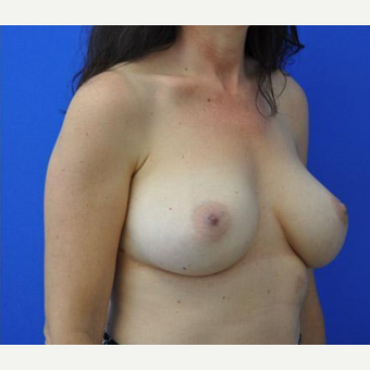 Breast Augmentation after 3206535