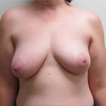 DIEP Flap Breast Reconstruction for this 39 Year Old Woman before 3305389