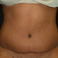 35-44 year old woman treated with Tummy Tuck after 2285545