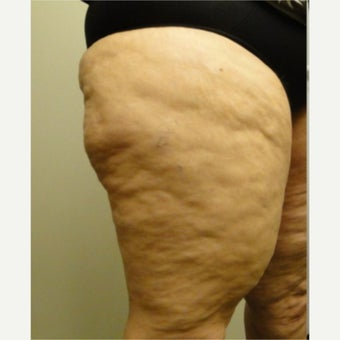 55-64 year old woman treated with Cellulaze before 1579753