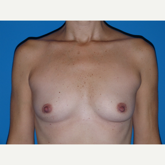 Breast Implants before 3807066