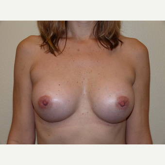 Breast Implants after 3807066