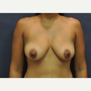 35-44 year old woman treated with Breast Lift with Implants before 3344164