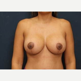 35-44 year old woman treated with Breast Lift with Implants after 3344164