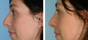 Functional Rhinoplasty before 1208317