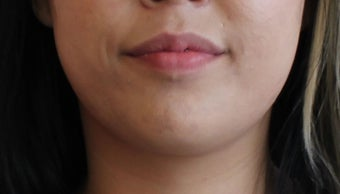 Buccal Fat Removal after 1359805