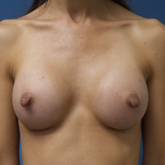 35-44 year old woman treated with Breast Augmentation after 3004994