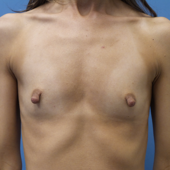 35-44 year old woman treated with Breast Augmentation before 3004994