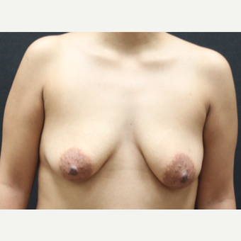 25-34 year old woman treated with Breast Lift before 3225515