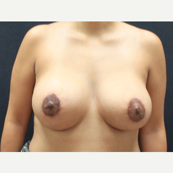 25-34 year old woman treated with Breast Lift after 3225515