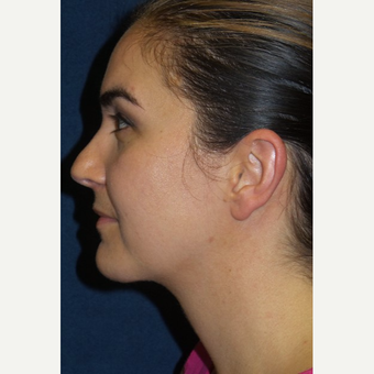 35-44 year old woman treated with Neck Lift after 3490172