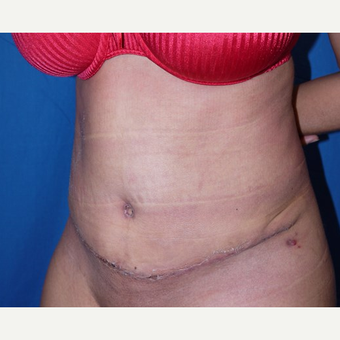 Tummy Tuck after 3743926
