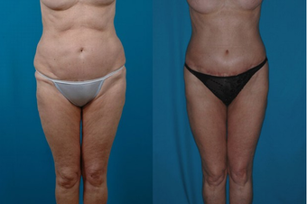 66-year-old woman treated with a Thigh Lift. before 574590