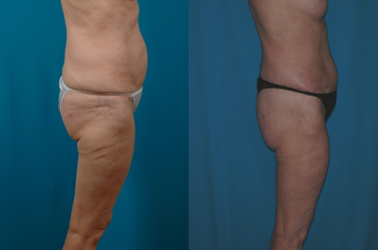 66-year-old woman treated with a Thigh Lift.