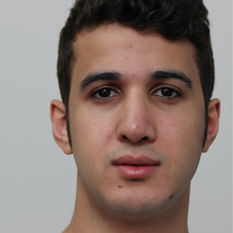 18-24 year old man treated with Revision Rhinoplasty after 3584025