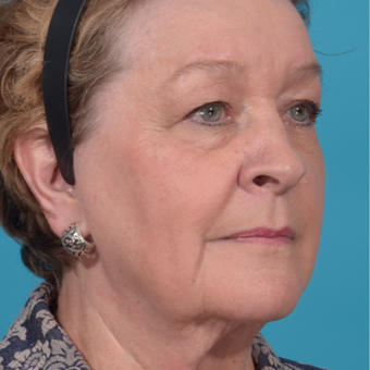 72 year old woman treated with Facelift/necklift, upper eyelid blepharoplasty before 3260370