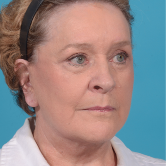 72 year old woman treated with Facelift/necklift, upper eyelid blepharoplasty after 3260370