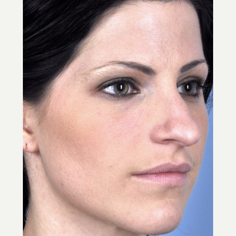 25-34 year old woman treated with Rhinoplasty before 3815693
