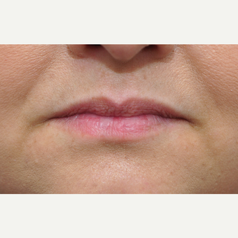 35-44 year old woman treated with Lip Augmentation before 3140370