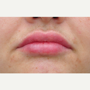 35-44 year old woman treated with Lip Augmentation after 3140370