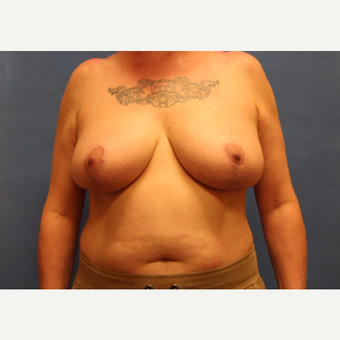 45-54 year old woman treated with Breast Reduction after 3625448