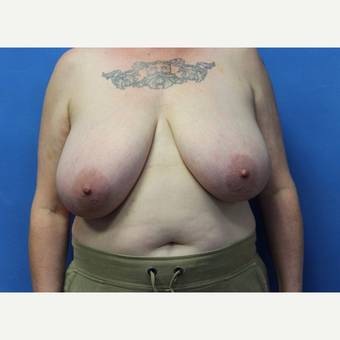45-54 year old woman treated with Breast Reduction before 3625448