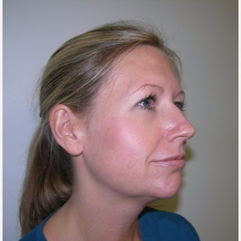 35-44 year old woman treated with Kybella after 2252538