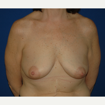 55-64 year old woman treated with Breast Lift with Implants before 3181964