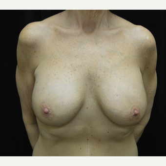 55-64 year old woman treated with Breast Lift with Implants after 3181964