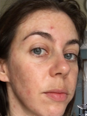 25-34 year old woman treated with Restylane to tear trough before 3836233