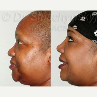 55-64 year old woman treated with Rhinoplasty before 2296932
