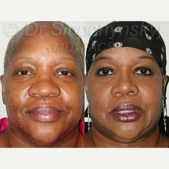 55-64 year old woman treated with Rhinoplasty after 2296932