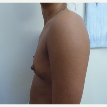18-24 year old woman treated with Breast Augmentation before 3375685