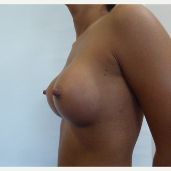 18-24 year old woman treated with Breast Augmentation after 3375685