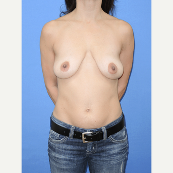 45-54 year old woman treated with Breast Lift with Implants before 3114357