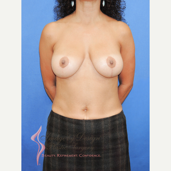 45-54 year old woman treated with Breast Lift with Implants after 3114357