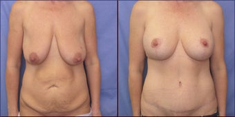 Breast lift with implants before 239124