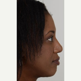 35-44 year old woman treated with African American Rhinoplasty after 1728622