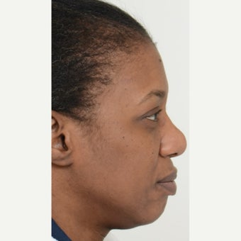 35-44 year old woman treated with African American Rhinoplasty before 1728622