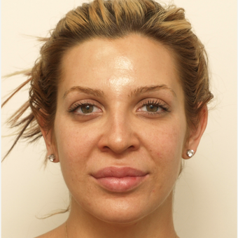 25-34 year old woman treated with Rhinoplasty before 3373427