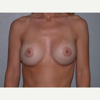 45-54 year old woman treated with Breast Implants
